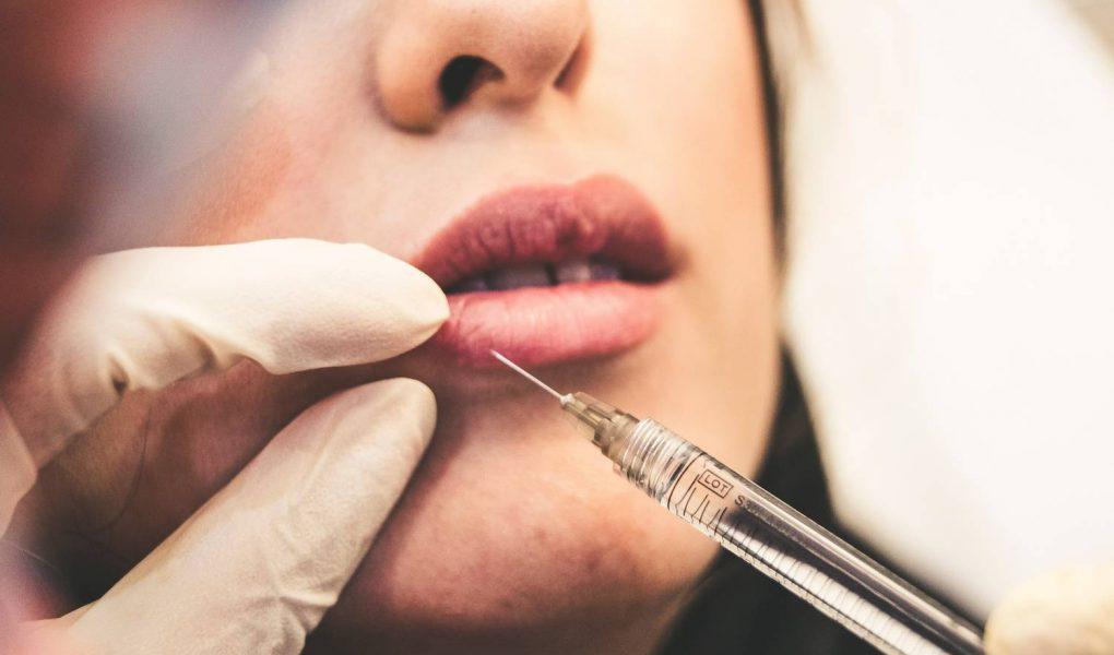 Jak pielęgnować usta po kwasie hialuronowym?